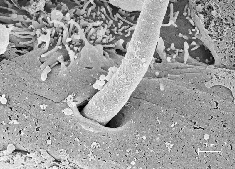 yeast fungus perforation
